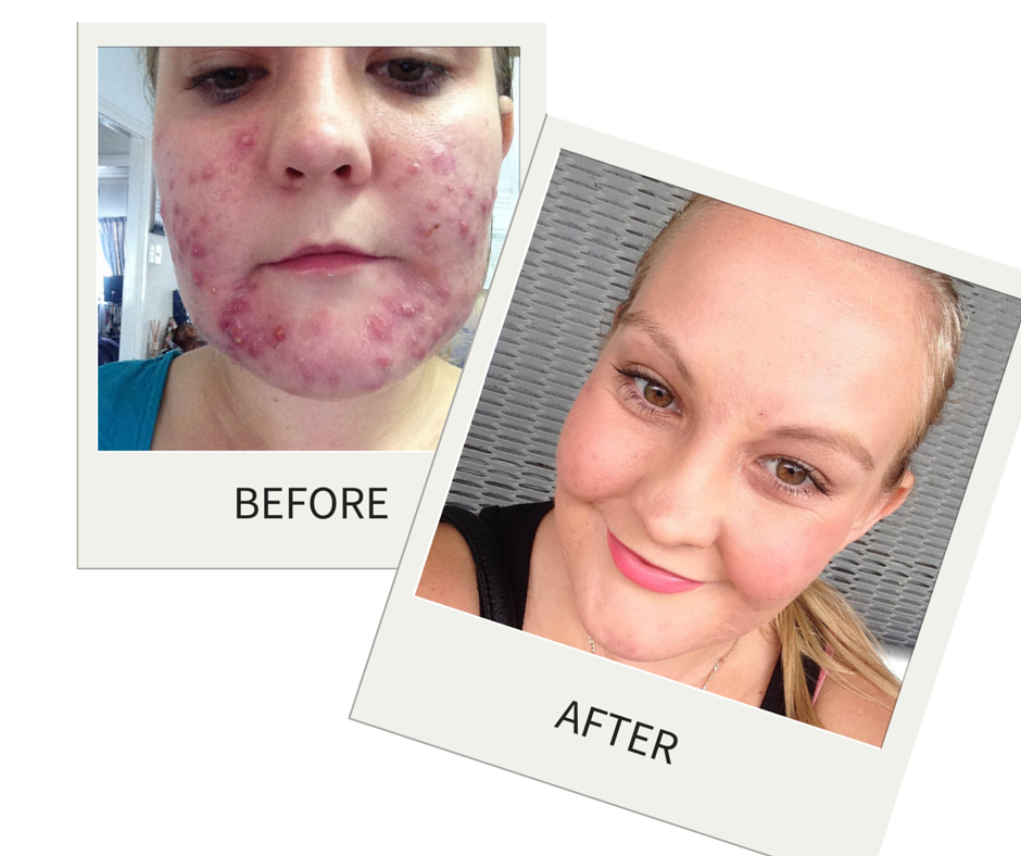 Krystyna's incredible before and after photos