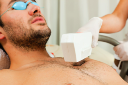 Male IPL Hair Removal - The smooth guys get the girls…