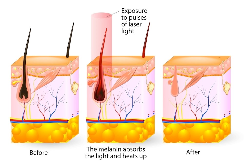 The follicle absorbs the light and heat resulting in permanent damage. Which means no more hair!