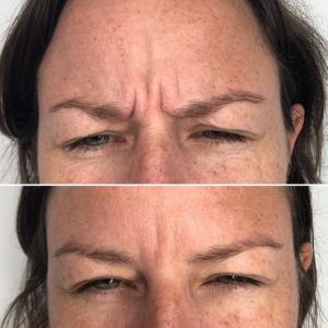 anti ageing wrinkle before after