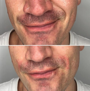 smile lines before and after